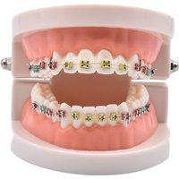 Dental Orthodontic Treatment Model With Ortho Metal Ceramic Bracket Arch Wire Buccal Tube Ligature Ties Dental Tools Teeth Model