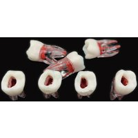1Pc Dental Tooth model Root Canal RCT Practice Pulp Cavity Clear Resin Teaching teeth model 1:1 Dental Model Dentist Tools