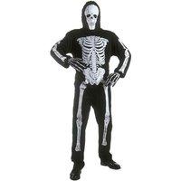 Widmann Skeleton