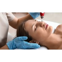 Bis 90 Min. Microneedling, opt. Ultraschallspatel und Ultraschall bei Beauty Klinik Spa