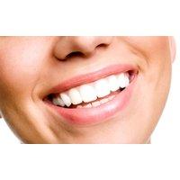 Titanium Dental Implant with Porcelain Crown at All Saints Dental Clinic (20% Off)