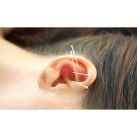 50 Min. Ohr-Akupunktur inkl. 10 Min. Anamnese in der Praxis für Komplementärmedizin
